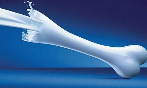 Tidak Semua Produk Susu Baik Untuk Kesehatan Tulang