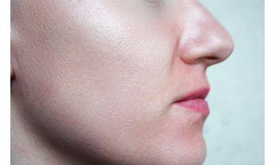 Langkah Mudah untuk Mencegah Pori pori Terbuka