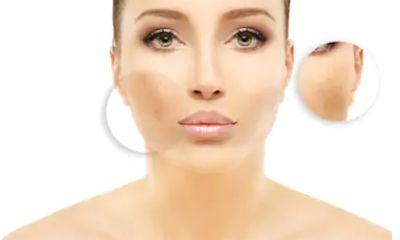 Untuk Kulit Kusam Suplemen yang Mengandung Vitamin B12 akan Mencegah Hiperpigmentasi